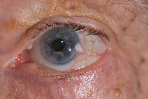 אונקולוגיה-של-העין-1-300x200